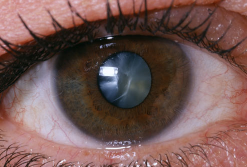 princ-rm-photo-of-close-up-of-eye